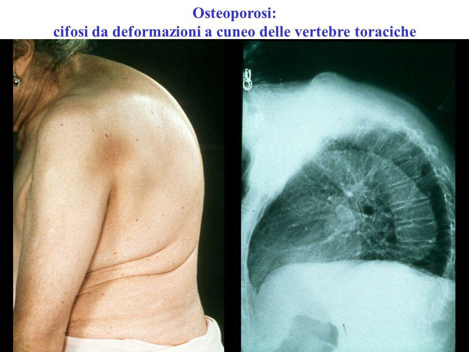 Osteoporosi: cifosi da deformazioni a cuneo delle vertebre toraciche