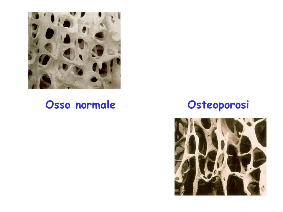 Osso normale Osteoporosi