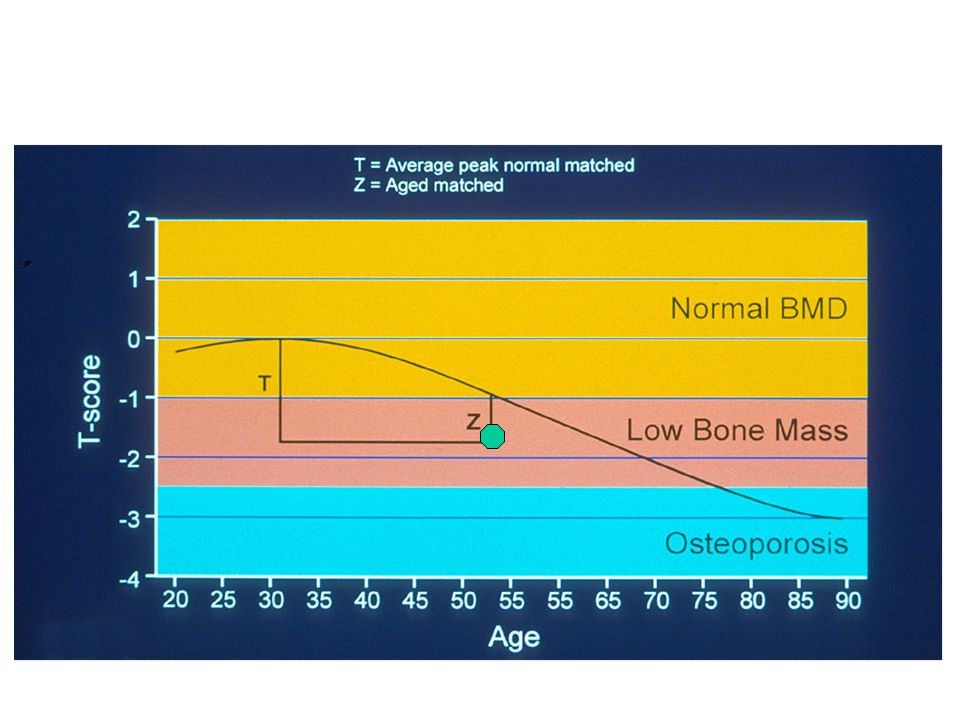 Bone density interpretation