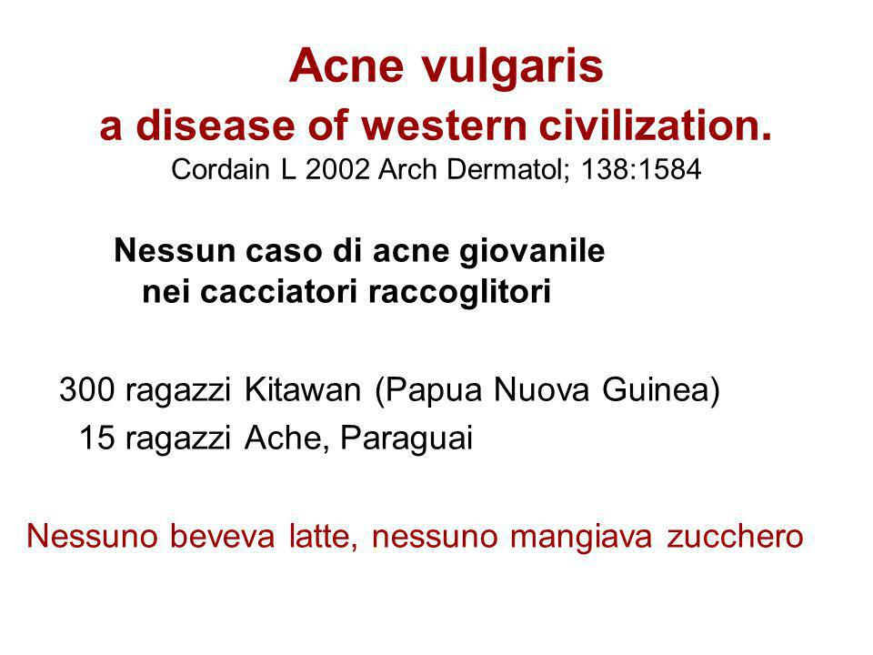 Acne vulgaris. a disease of western civilization