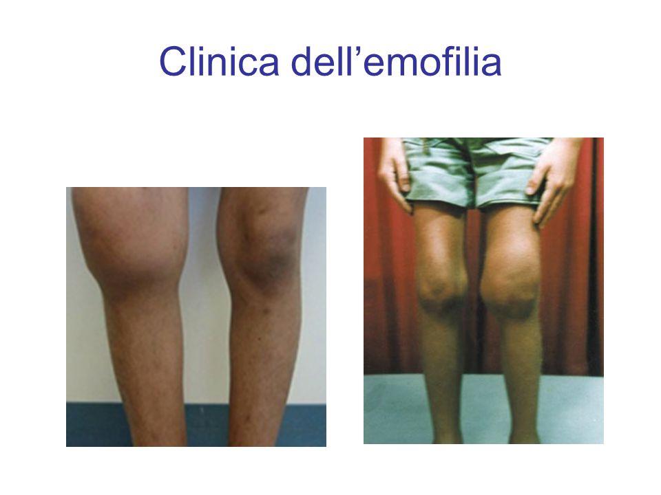 Clinica dell'emofilia