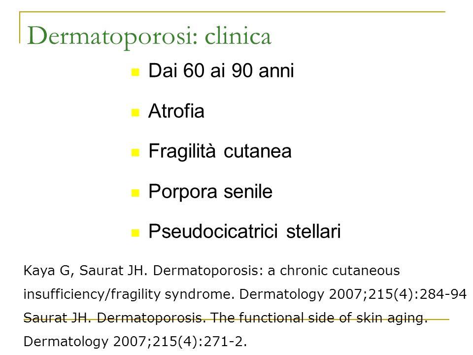 Dermatoporosi: clinica