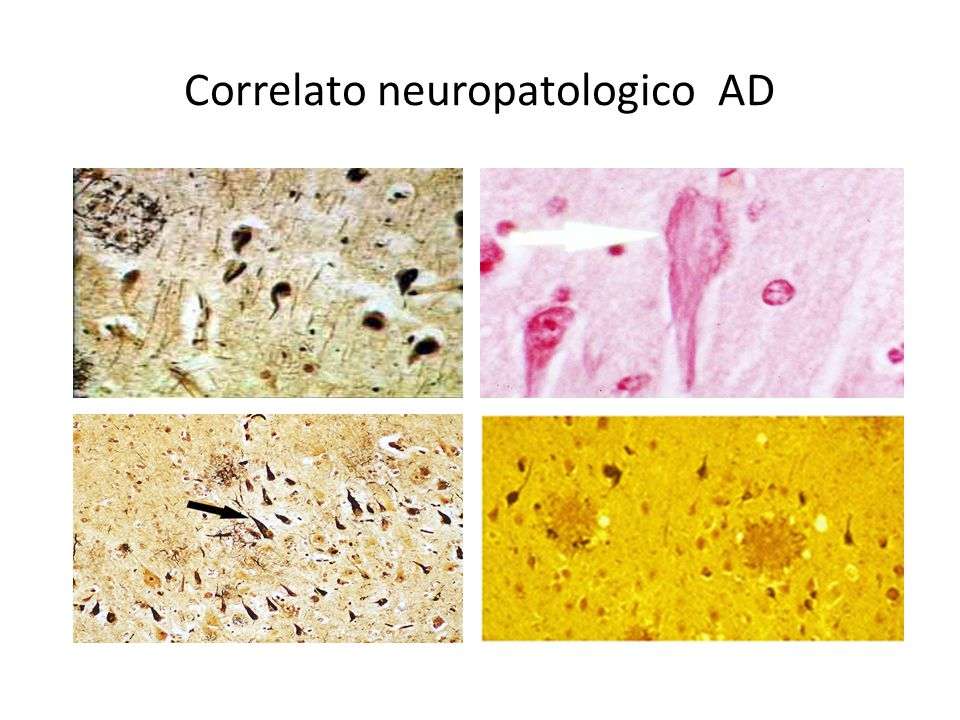 Correlato neuropatologico AD