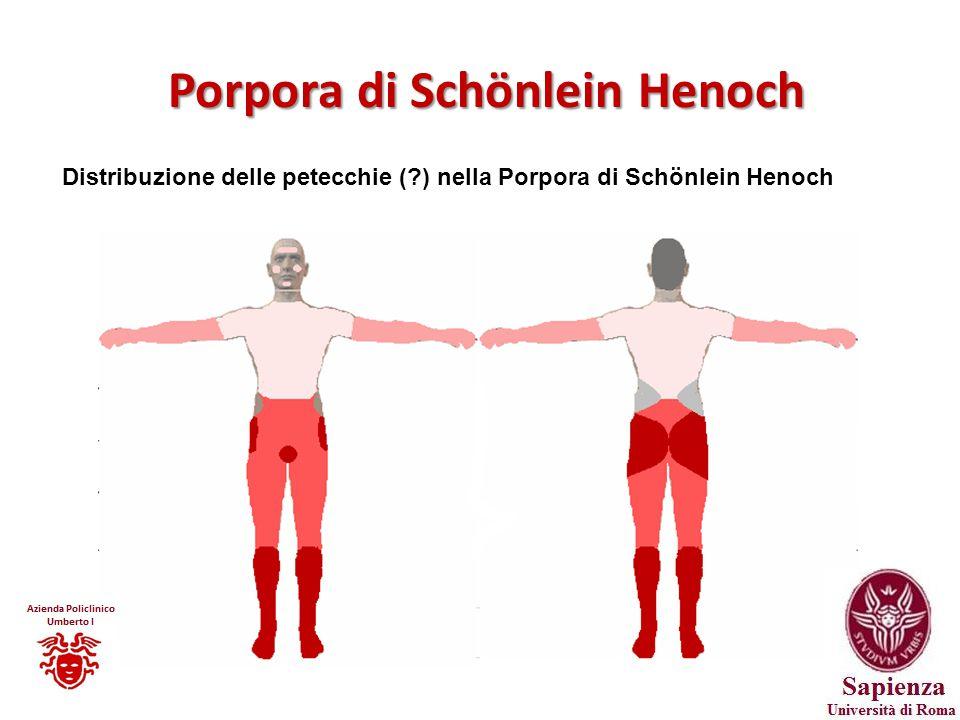 Porpora di Schönlein Henoch