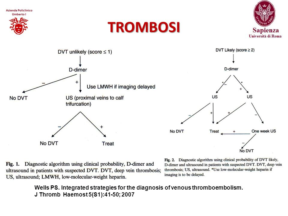 TROMBOSI Wells PS. Integrated strategies for the diagnosis of venous thromboembolism.