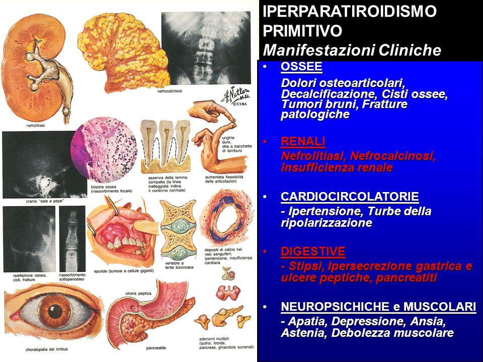 IPERPARATIROIDISMO PRIMITIVO Manifestazioni Cliniche