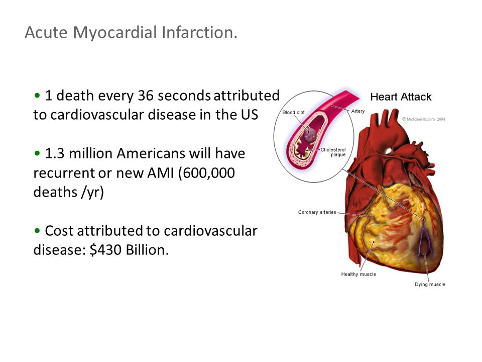 Acute Myocardial Infarction.