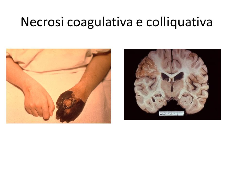 Necrosi coagulativa e colliquativa