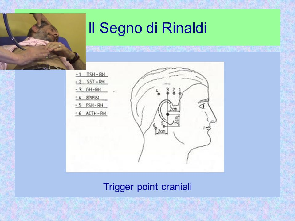 Trigger point craniali
