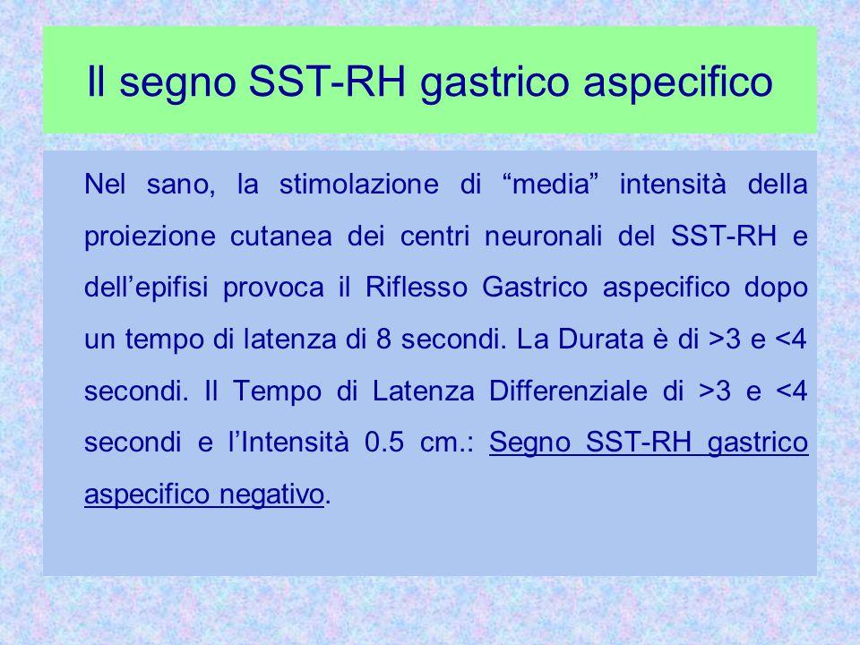 Il segno SST-RH gastrico aspecifico