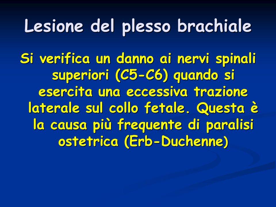 Lesione del plesso brachiale