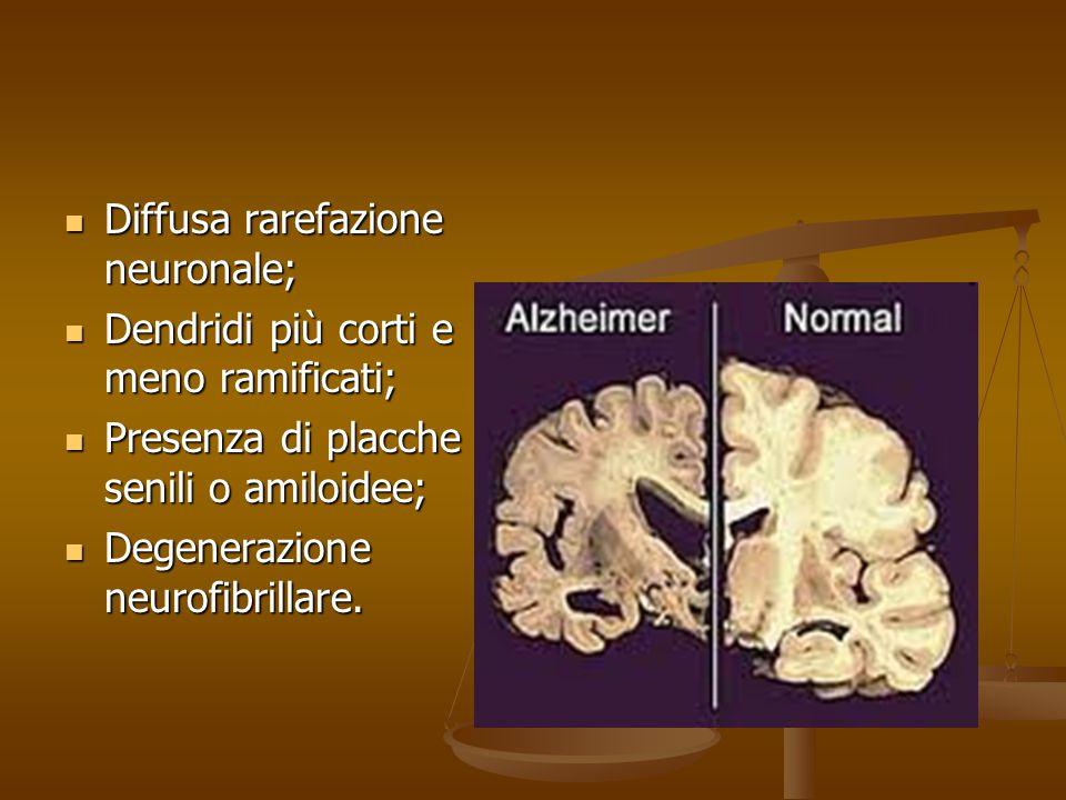 Diffusa rarefazione neuronale;