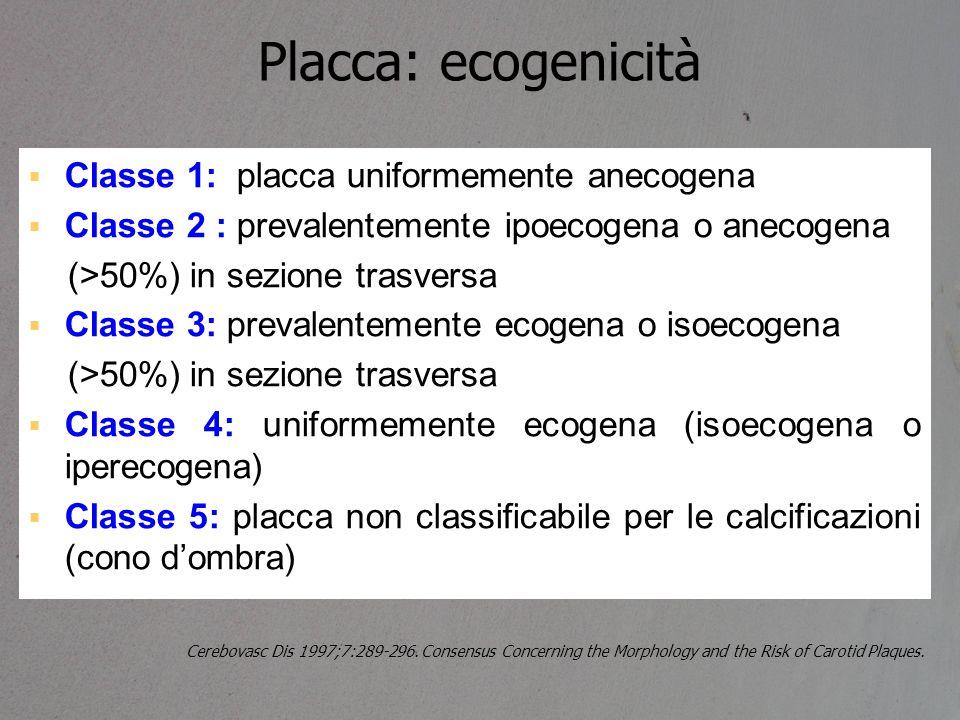 Placca: ecogenicità Classe 1: placca uniformemente anecogena