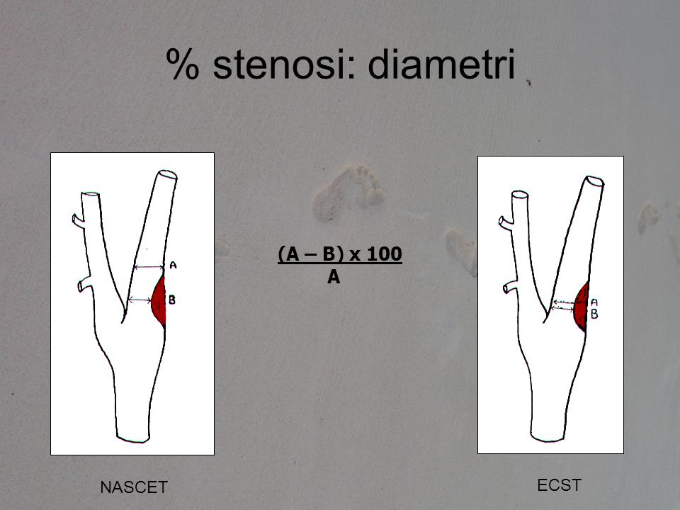 % stenosi: diametri (A – B) x 100 A NASCET ECST