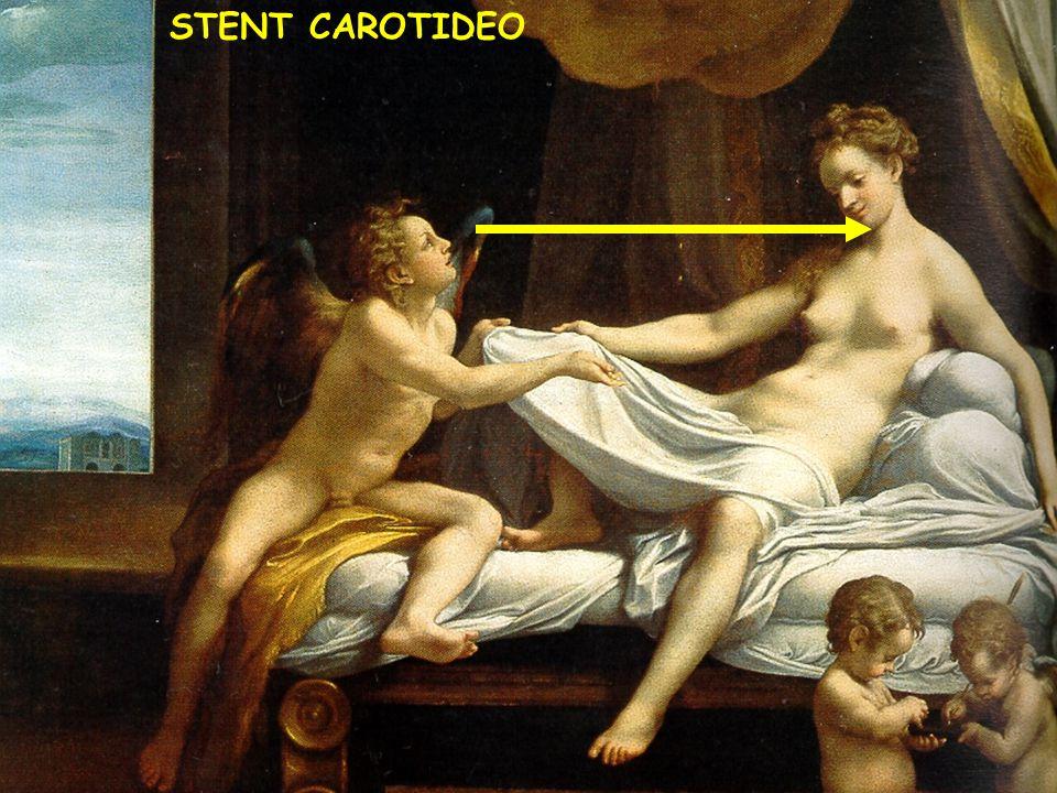 STENT CAROTIDEO