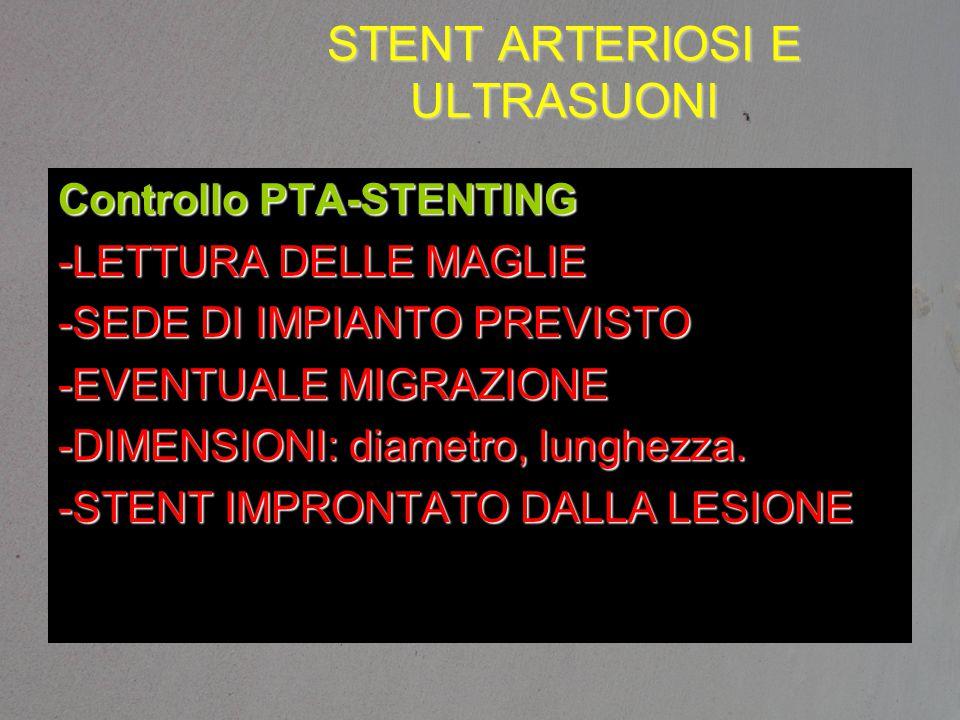 STENT ARTERIOSI E ULTRASUONI