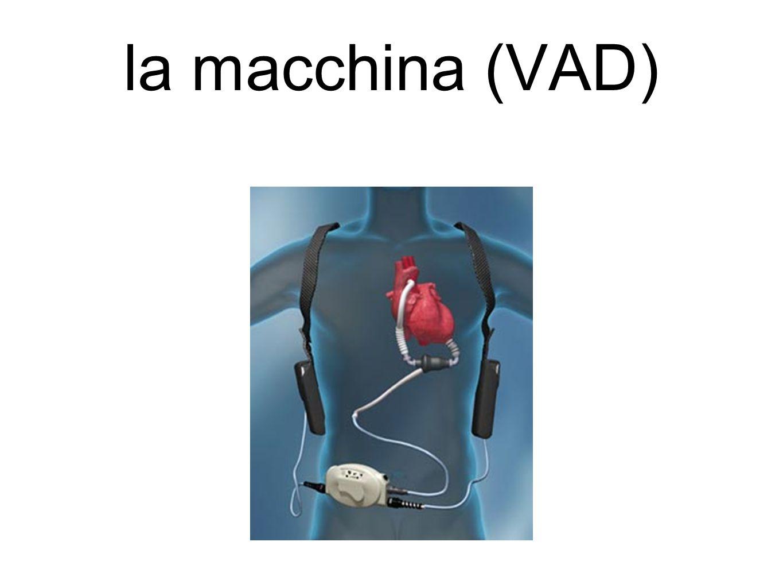 la macchina (VAD)