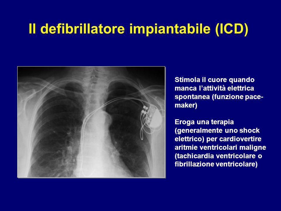 Il defibrillatore impiantabile (ICD)