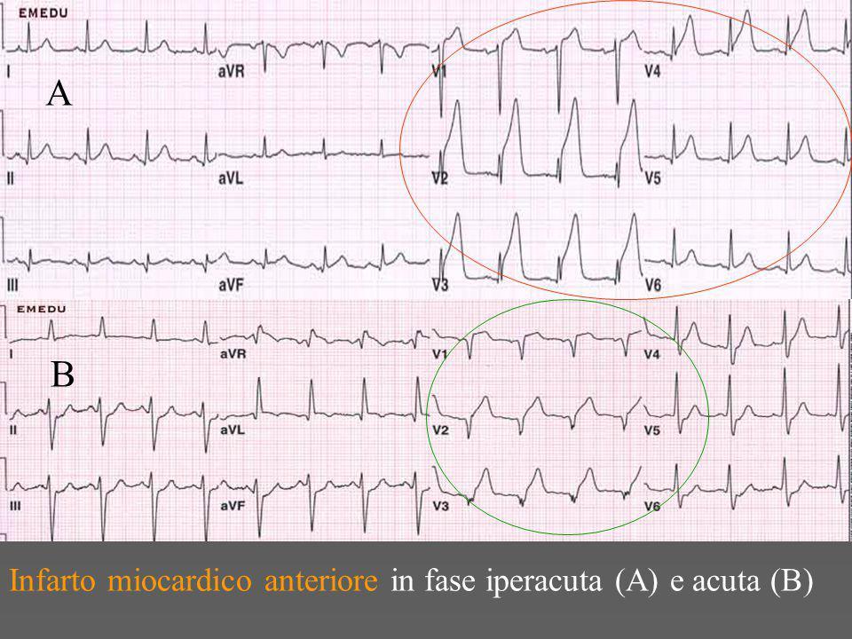 A B Infarto miocardico anteriore in fase iperacuta (A) e acuta (B)