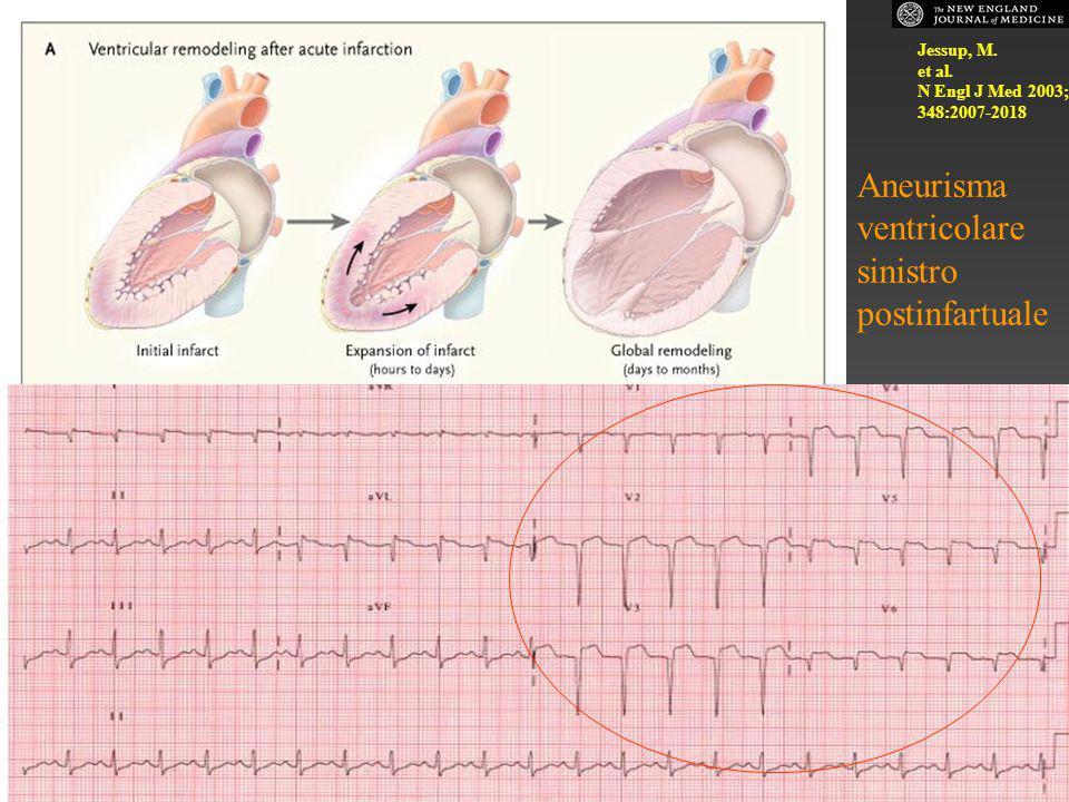 Aneurisma ventricolare sinistro postinfartuale