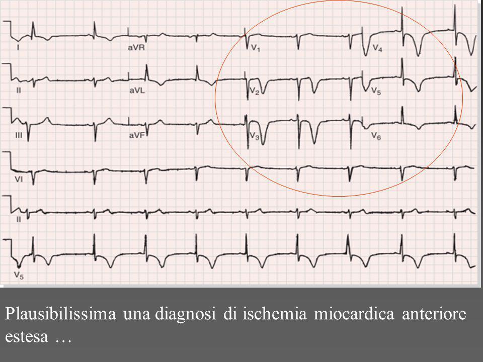 Plausibilissima una diagnosi di ischemia miocardica anteriore estesa …