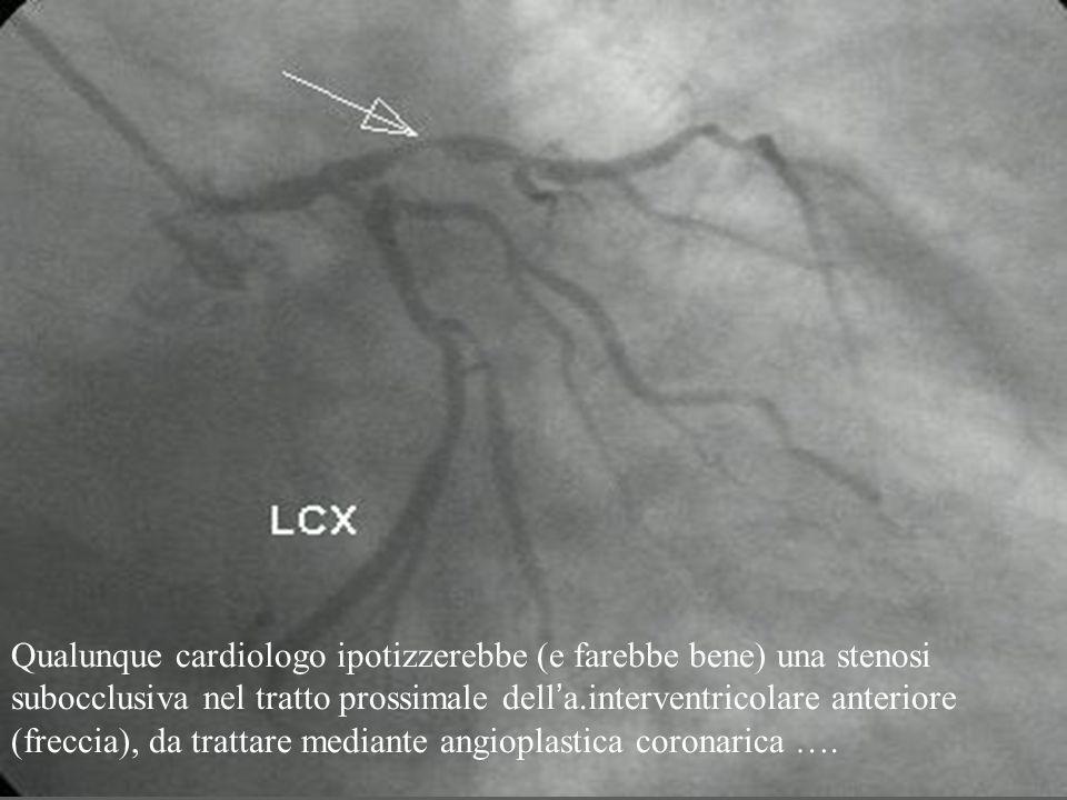Qualunque cardiologo ipotizzerebbe (e farebbe bene) una stenosi subocclusiva nel tratto prossimale dell'a.interventricolare anteriore (freccia), da trattare mediante angioplastica coronarica ….