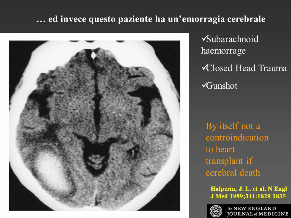 … ed invece questo paziente ha un'emorragia cerebrale