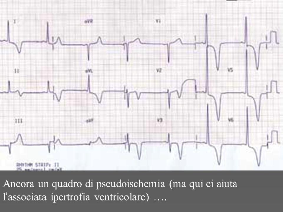 Ancora un quadro di pseudoischemia (ma qui ci aiuta l'associata ipertrofia ventricolare) ….