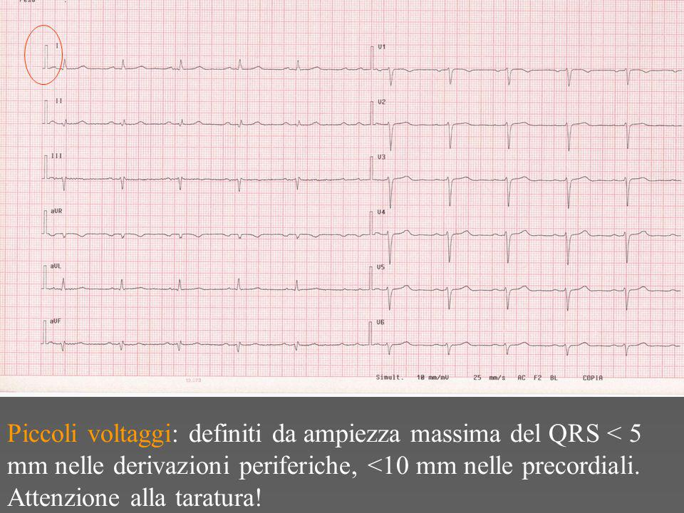 Piccoli voltaggi: definiti da ampiezza massima del QRS < 5 mm nelle derivazioni periferiche, <10 mm nelle precordiali.