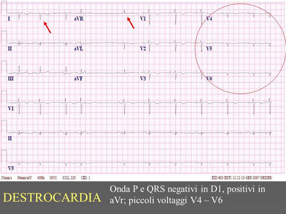 Onda P e QRS negativi in D1, positivi in aVr; piccoli voltaggi V4 – V6