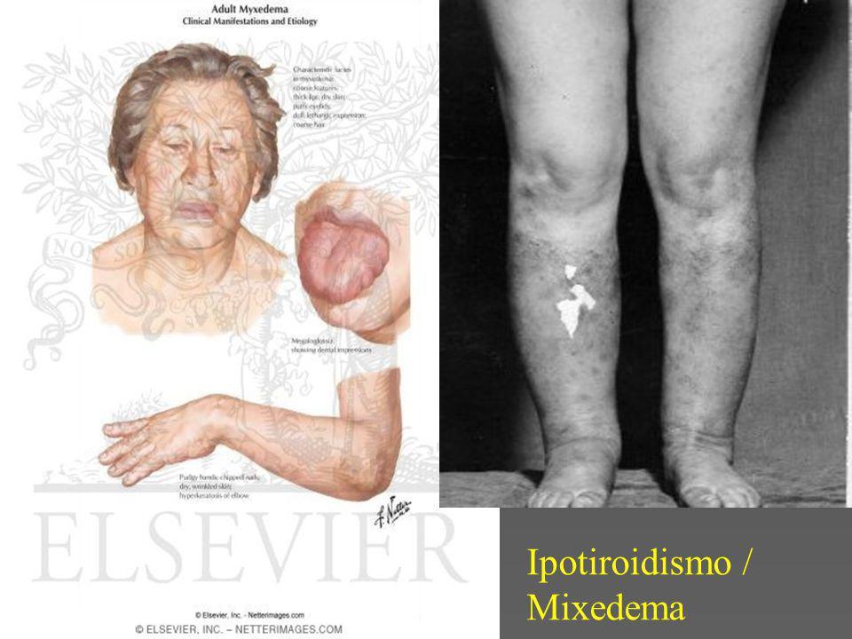 Ipotiroidismo / Mixedema