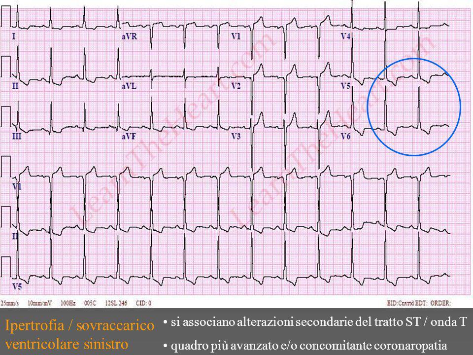 Ipertrofia / sovraccarico ventricolare sinistro