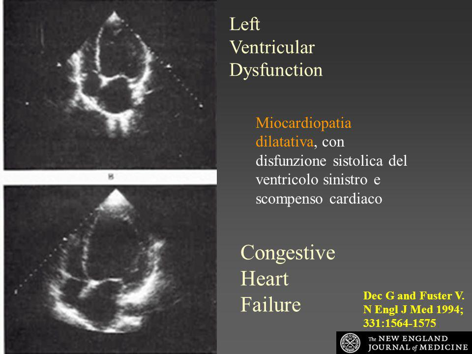 Congestive Heart Failure Left Ventricular Dysfunction