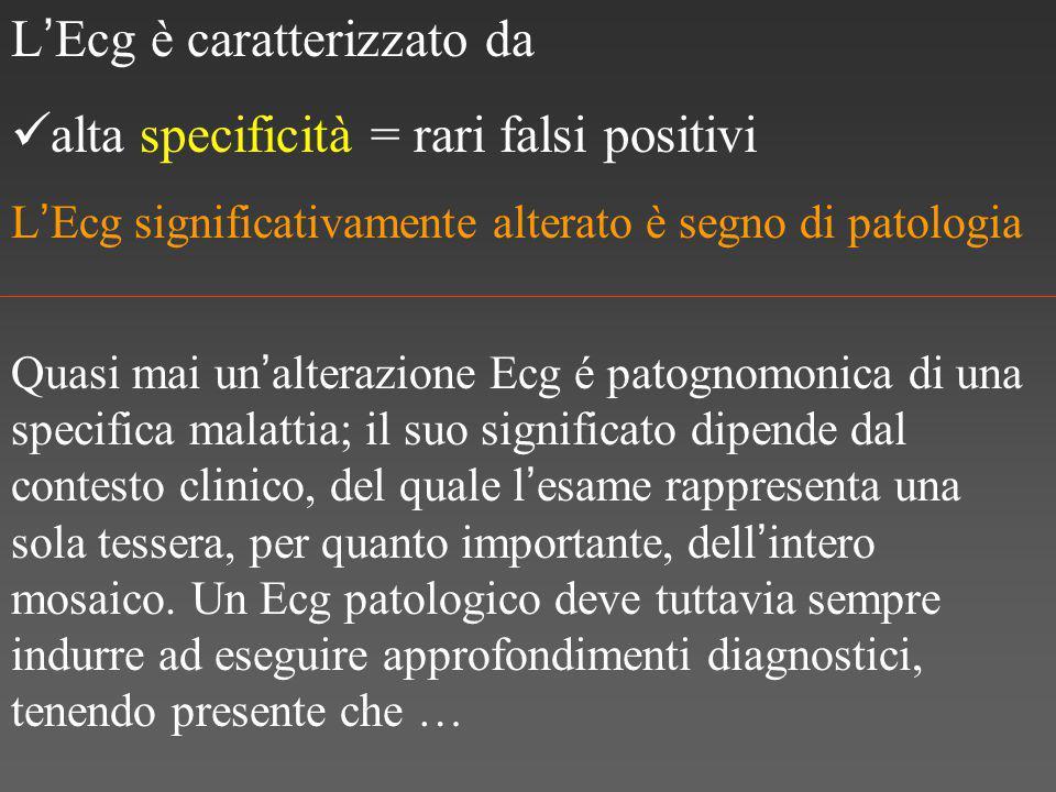 L'Ecg è caratterizzato da alta specificità = rari falsi positivi