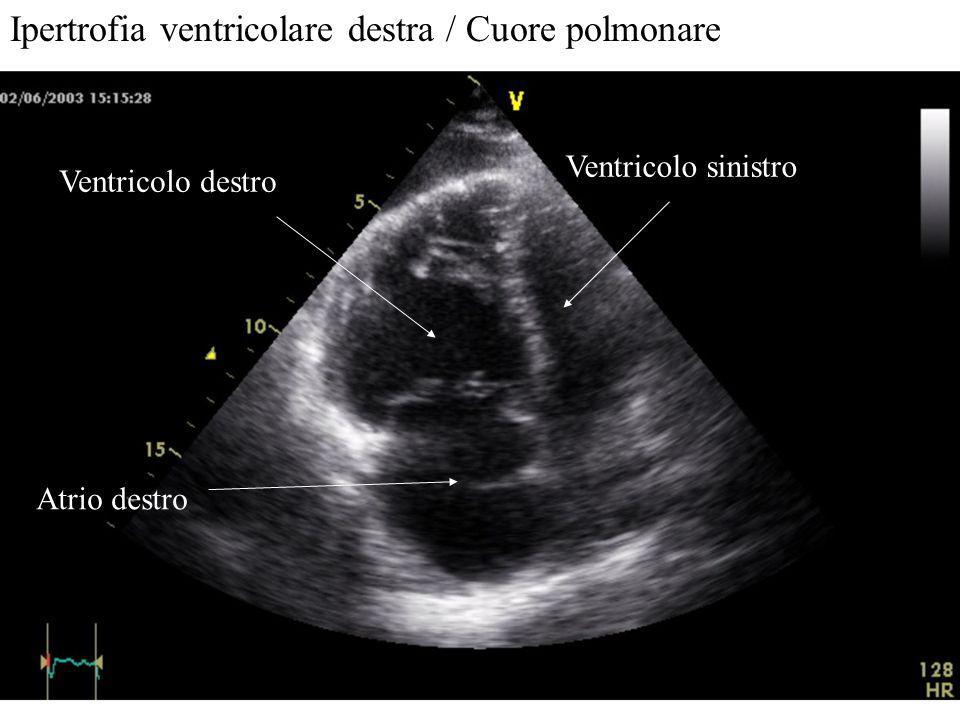 Ipertrofia ventricolare destra / Cuore polmonare