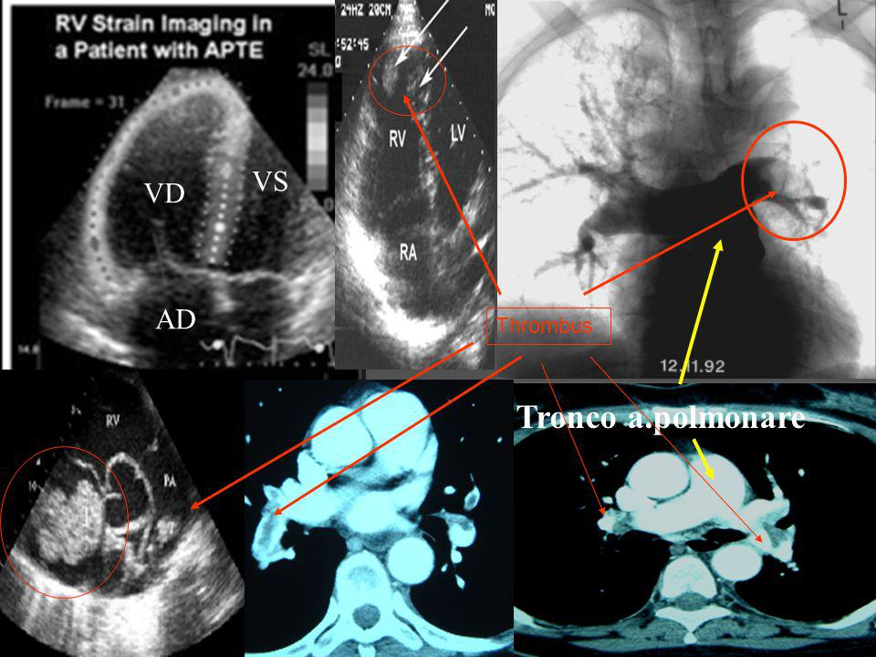 VS VD AD Thrombus Tronco a.polmonare
