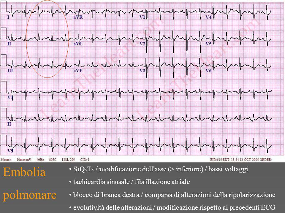 Embolia polmonare. S1Q3T3 / modificazione dell'asse (> inferiore) / bassi voltaggi. tachicardia sinusale / fibrillazione atriale.
