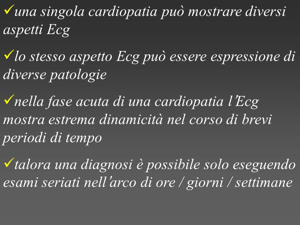 una singola cardiopatia può mostrare diversi aspetti Ecg