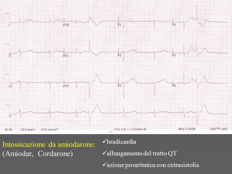 Intossicazione da amiodarone: (Amiodar, Cordarone)