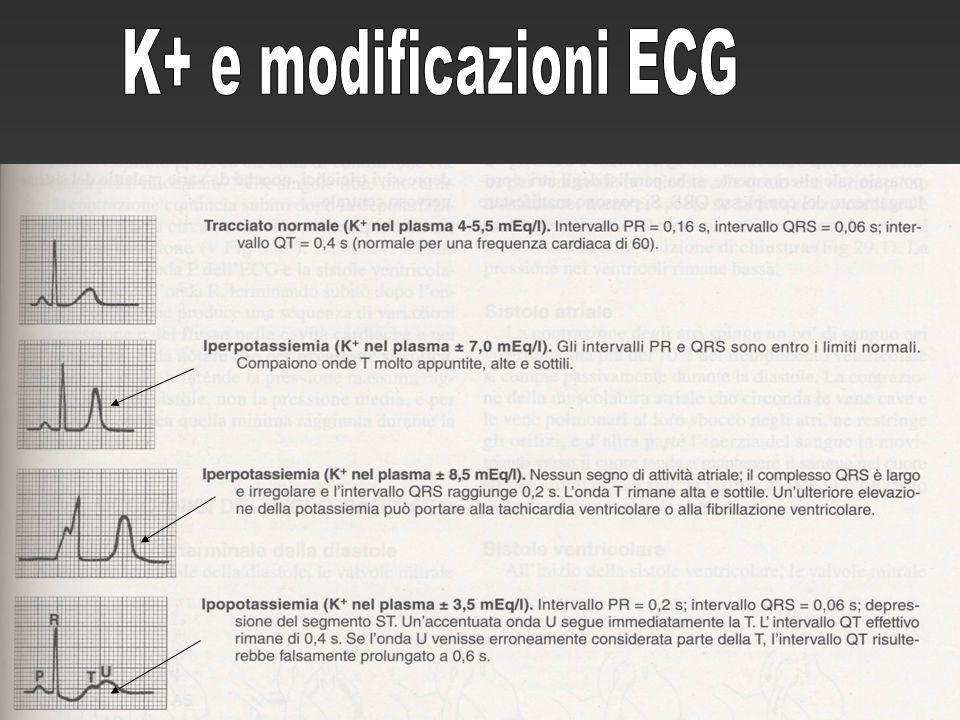 K+ e modificazioni ECG