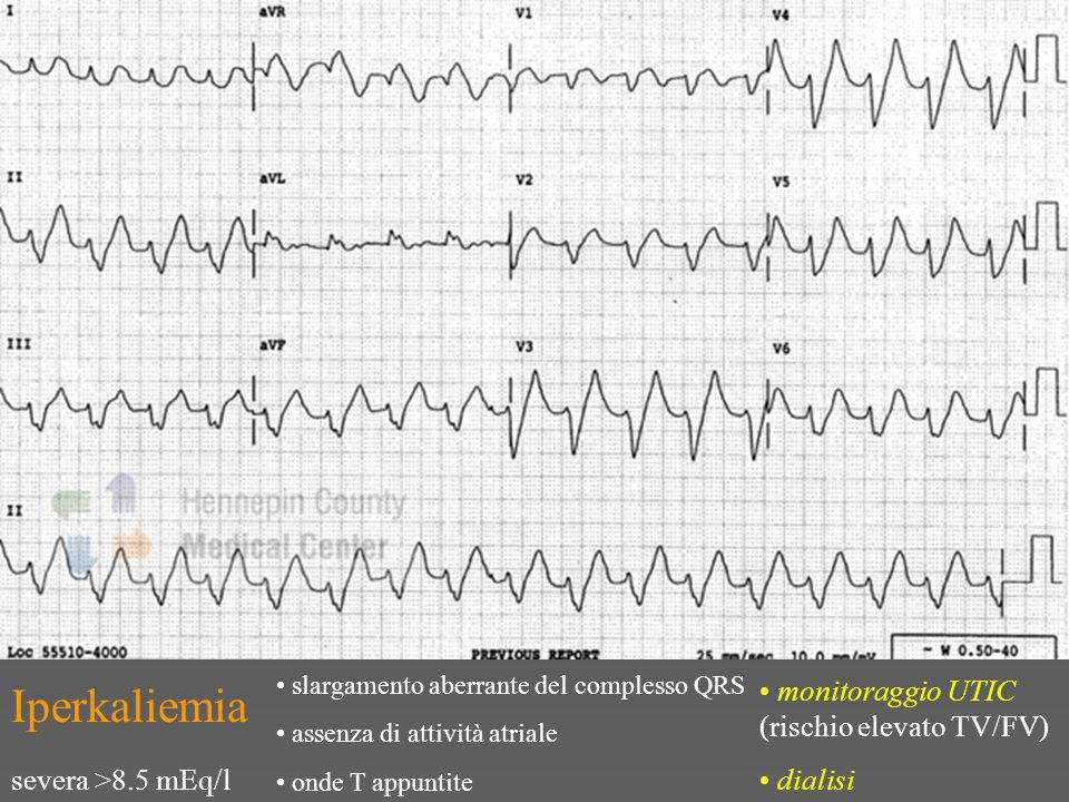 Iperkaliemia monitoraggio UTIC (rischio elevato TV/FV) dialisi