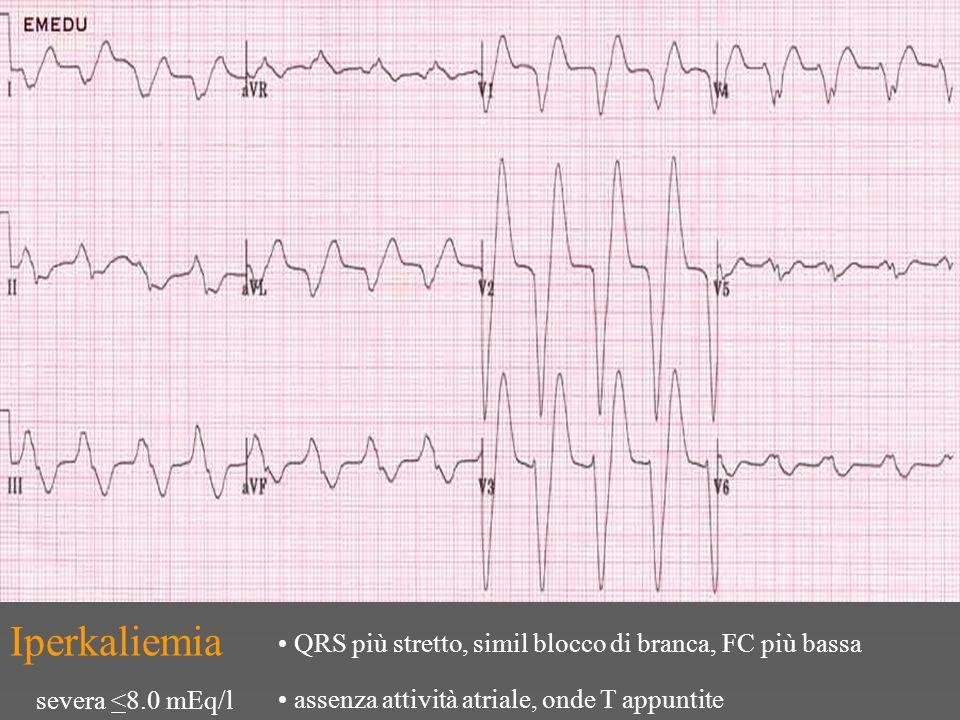 Iperkaliemia QRS più stretto, simil blocco di branca, FC più bassa