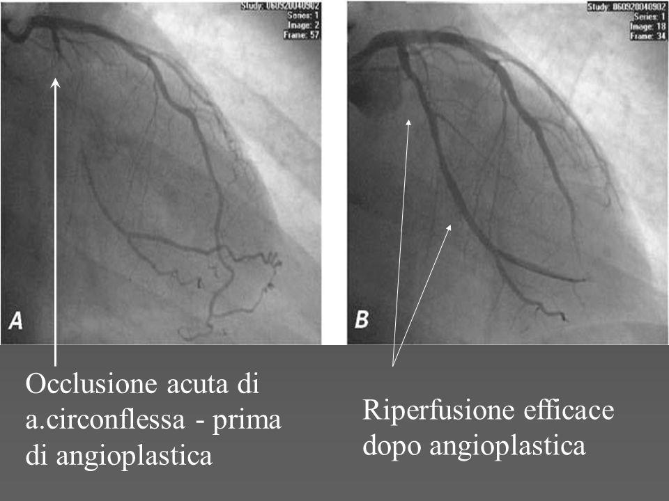 Occlusione acuta di a.circonflessa - prima di angioplastica