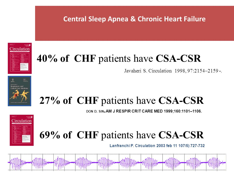 Central Sleep Apnea & Chronic Heart Failure