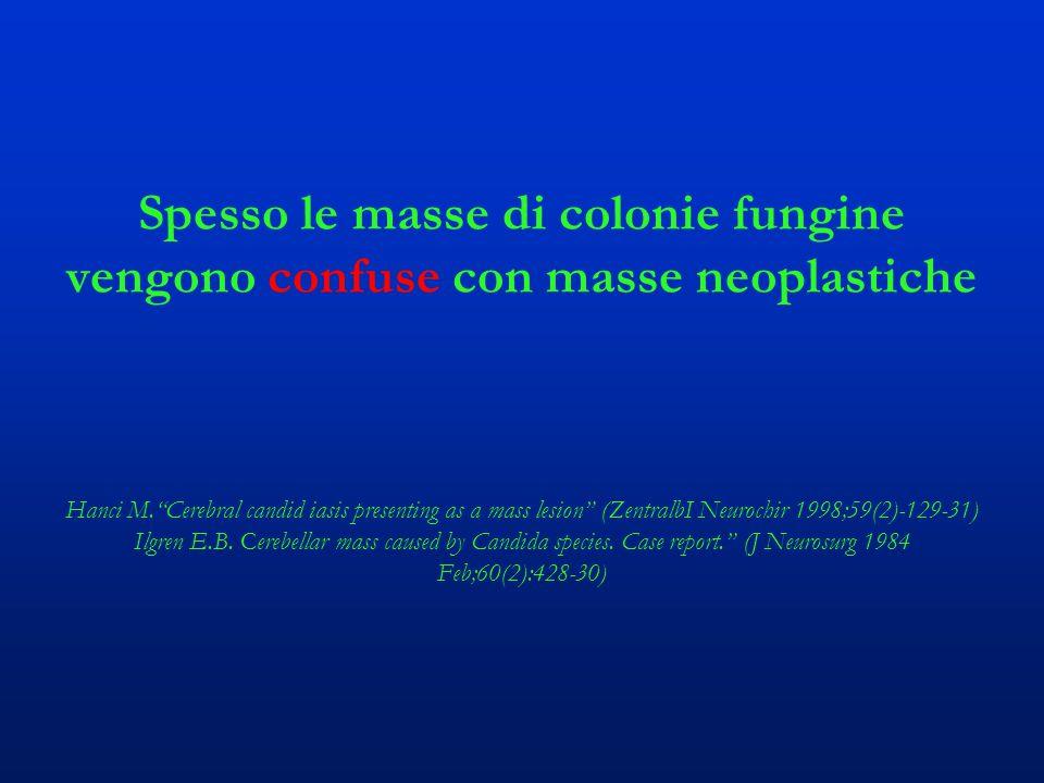 Spesso le masse di colonie fungine vengono confuse con masse neoplastiche Hanci M. Cerebral candid iasis presenting as a mass lesion (ZentralbI Neurochir 1998;59(2)-129-31) Ilgren E.B.