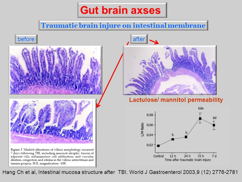 Gut brain axses Traumatic brain injure on intestinal membrane before
