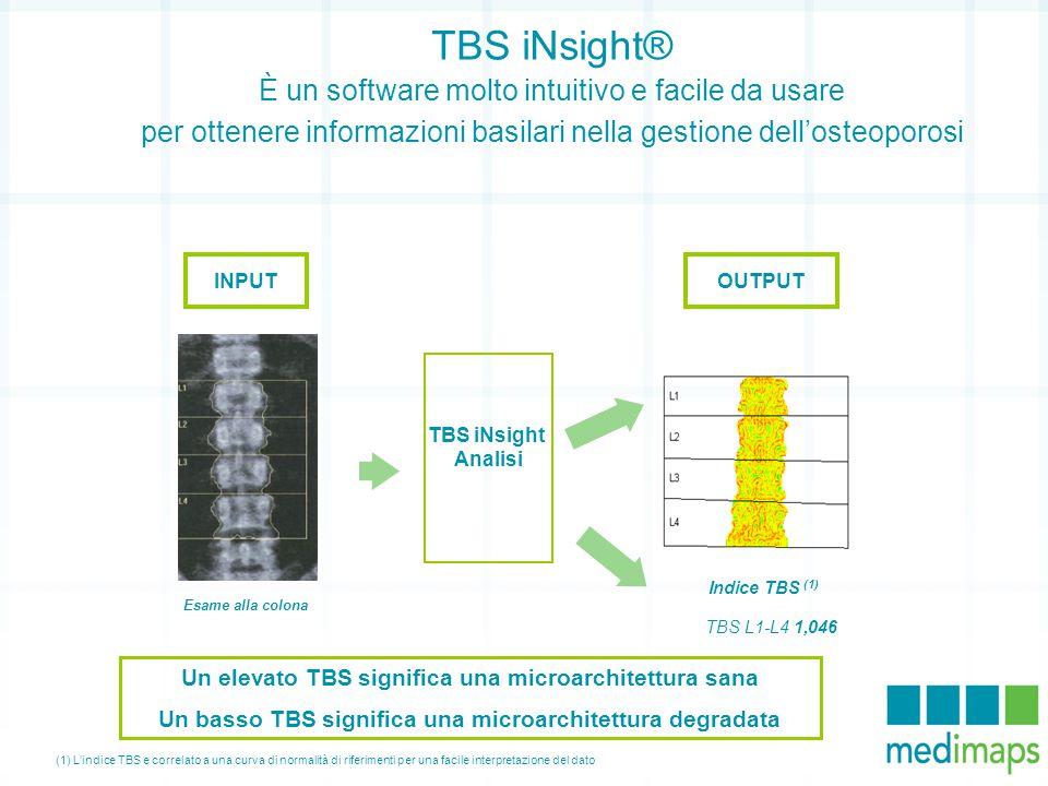 TBS iNsight® È un software molto intuitivo e facile da usare