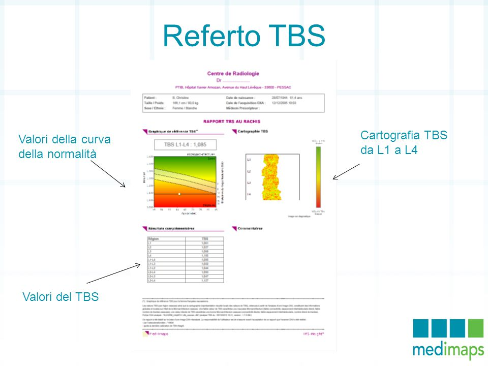 Referto TBS Cartografia TBS da L1 a L4