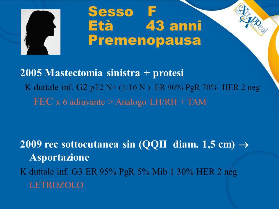Sesso F Età 43 anni Premenopausa 2005 Mastectomia sinistra + protesi