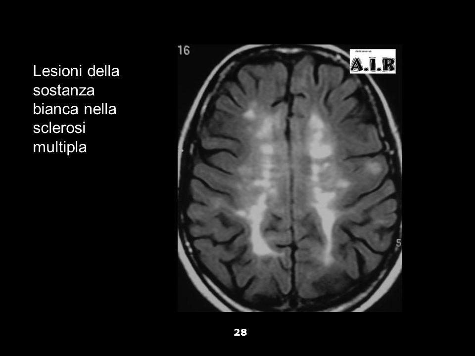 Lesioni della sostanza bianca nella sclerosi multipla